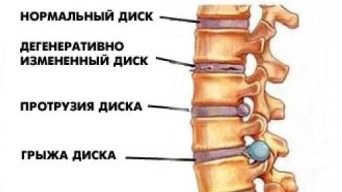 Заниматься лечебной физкультурой при артрозе плечевого сустава рекомендуется и в остром периоде, при сильной боли; не