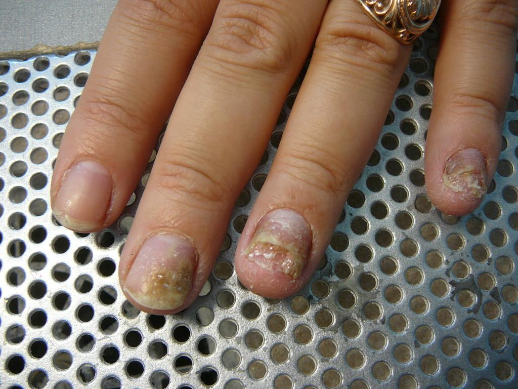 как выглядит грибок ногтей