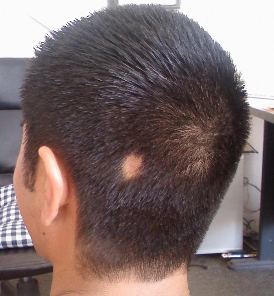 Волосы на теле мужчины выпадают волосы