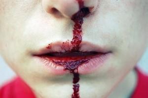 почему кровь бежит из носа