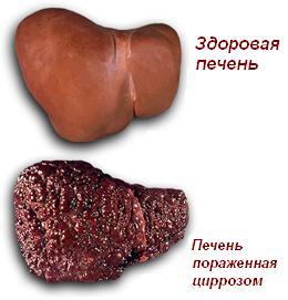Симптомы цирроза печени на различных стадиях