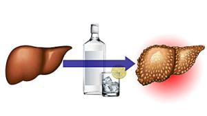 какие симптомы при циррозе печени