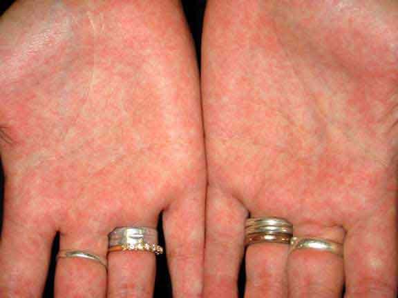 скарлатина у взрослых симптомы и лечение фото