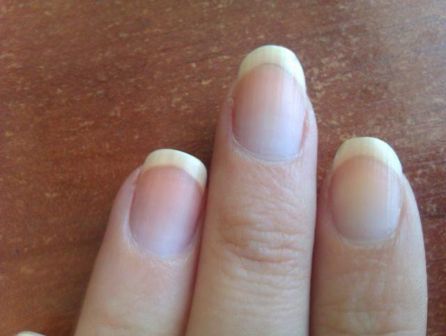 Синеют ногти на руках причины фото