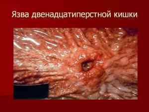 Язвенная болезнь двенадцатиперстной кишки: причины, симптомы, лечение