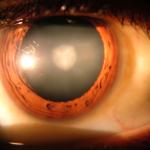 народные методы от катаракты
