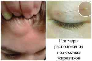 narodnye-sredstva-ot-zhirovikov-na-lice