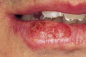 Рак губы симптомы первые признаки онкологии