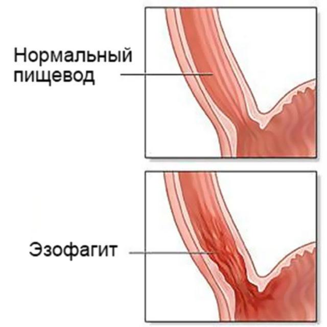 Эзофагит пищевода: классификация, симптомы, лечение