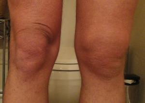 Отек коленных суставов
