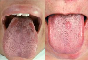 Симптомы сифилиса и методы его лечения
