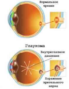 Симптомы глаукомы и капли против нее