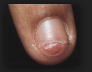 гломусные опухоли пальца фото