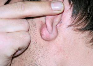 гломусные опухоли уха фото