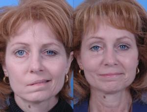 симптомы паралича лицевого нерва