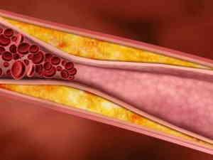 профилактика атеросклероза сосудов головного мозга