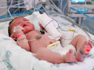 сепсис у новорожденных фото