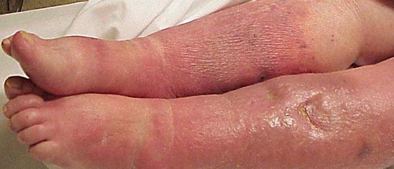 сепсис ног у новорожденного фото
