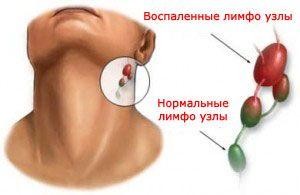 инфекционный мононуклеоз симптомы