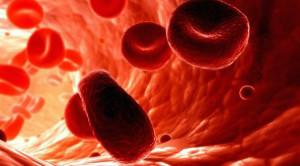 железодефецитная анемия