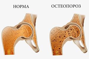 остеохондроз тазобедренного сустава