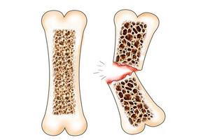 переломы при остеопарозе