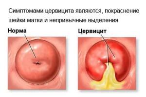 хронические цервицит шейки матки