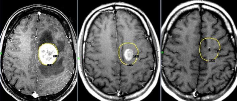 как определить рак головного мозга