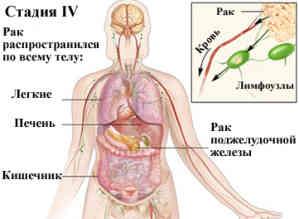 Что необходимо знать о раке поджелудочной железы?