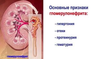 Санатории по лечению суставов и позвоночника в белоруссии