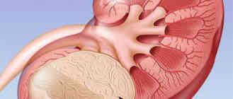 злокачественная опухоль почки