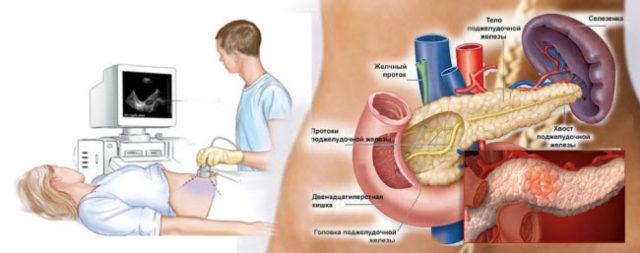 Киста поджелудочной железы в международной классификации болезней